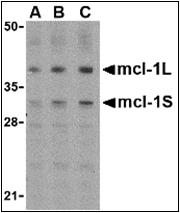 AP30549PU-N - MCL1