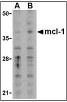 AP30548PU-N - MCL1