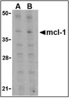 AP30547PU-N - MCL1