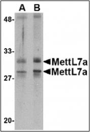AP30558PU-N - METTL7A