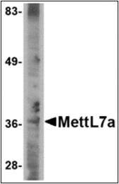 AP30557PU-N - METTL7A