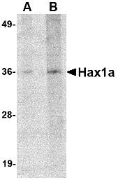 AP30392PU-N - HAX1