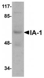 AP30396PU-N - INSM1 / IA1