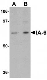 AP30397PU-N - INSM2 / IA6