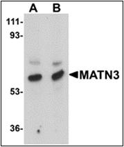 AP30544PU-N - Matrilin-3