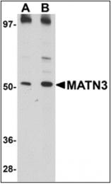 AP30543PU-N - Matrilin-3