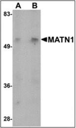 AP30541PU-N - Matrilin-1