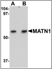 AP30540PU-N - Matrilin-1