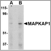 AP30537PU-N - MIP1