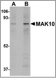 AP30532PU-N - NAA35 / MAK10