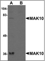 AP30531PU-N - NAA35 / MAK10