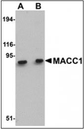 AP30528PU-N - MACC1