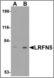 AP30518PU-N - LRFN5