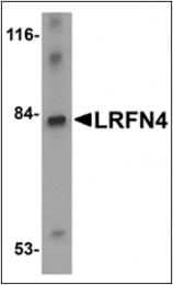 AP30517PU-N - LRFN4