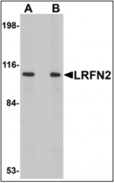 AP30515PU-N - LRFN2