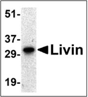 AP30512PU-N - BIRC7 / LIVIN