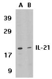AP30413PU-N - Interleukin-21 / IL21