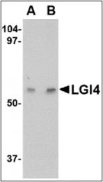 AP30502PU-N - LGI4