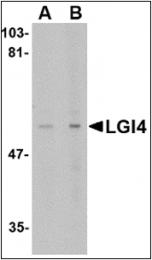 AP30501PU-N - LGI4