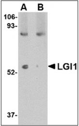 AP30497PU-N - LGI1 / EPT