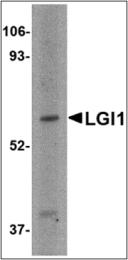 AP30496PU-N - LGI1 / EPT