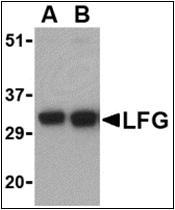 AP30495PU-N - FAIM2