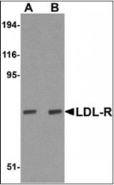 AP30494PU-N - LDLR