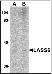 AP30493PU-N - LASS6
