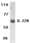 AP30416PU-N - IL22RA1 / IL22R
