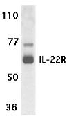 AP30417PU-N - IL22RA1 / IL22R