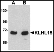 AP30484PU-N - KLHL15