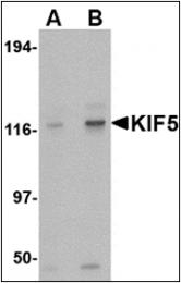 AP30480PU-N - KIF5A
