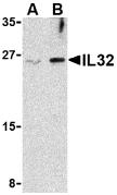 AP30425PU-N - Interleukin-32 / IL32