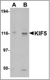 AP30479PU-N - KIF5A