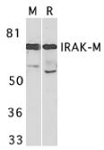 AP30443PU-N - IRAK3