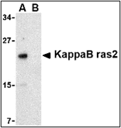 AP30477PU-N - NKIRAS2