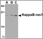 AP30476PU-N - NKIRAS1