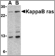 AP30475PU-N - NKIRAS1