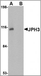 AP30471PU-N - Junctophilin-3 / JPH3