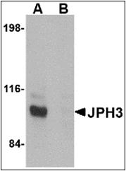 AP30470PU-N - Junctophilin-3 / JPH3