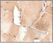 AP30467PU-N - Junctophilin-1 / JHP1