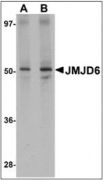 AP30464PU-N - JMJD6 / PTDSR