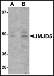 AP30463PU-N - JMJD5