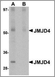 AP30462PU-N - JMJD4
