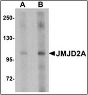 AP30460PU-N - JMJD2A / KDM4A