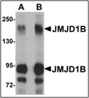 AP30458PU-N - JMJD1B / KDM3B