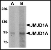 AP30457PU-N - KDM3A / JHDM2A