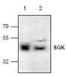 AP00193PU-N - SGK1 / SGK