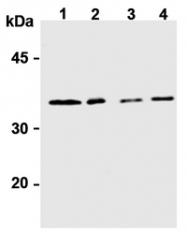 AM20177AF-N - Syntaxin 6 / STX6