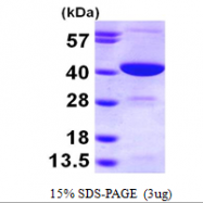 AR09642PU-L - GMP reductase 2 / GMPR2